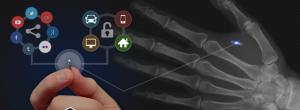 NFC chip implant in the soft tissue of the hand